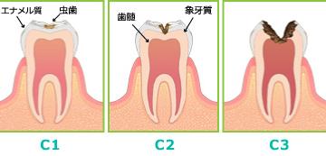 なぜ虫歯は黒い?